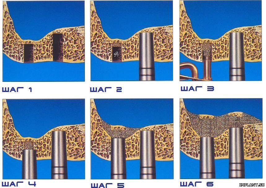 Sinus Floor Elevation With Osteotomes : Глоссарий дайджест дентальной имплантации